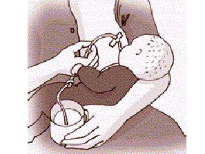 relactación y lactancia inducida (003)